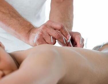 针灸可以减肥瘦身,有什么样的效果
