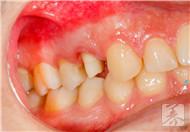 八岁孩子牙龈肿痛吃什么消炎