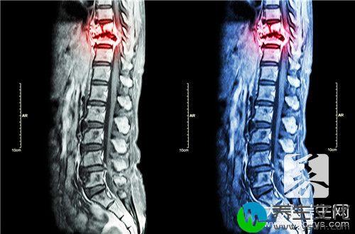 艾灸脊柱的好处