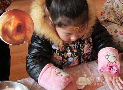 孩子发烧怎么办 保证身体中水分预防这病